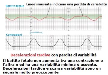 normale-decelerazioni-tardive-con-perdita-di-varia