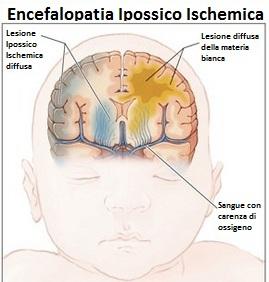 Encefalopatia-Ipossico-Ischemica
