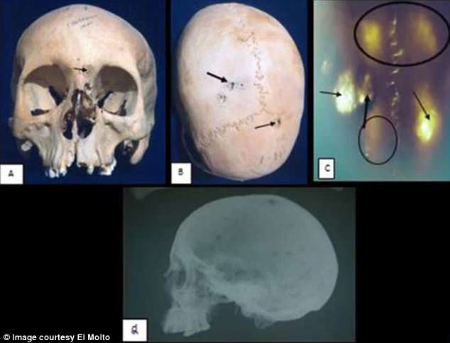 Scientists analysed ancient remains for lesions that some cancers leave on bone, and used these marks to roughly diagnose each case. One woman in her 20s suffered from cancer that had spread to her skull (arrows point to lesions). She may have had HPV