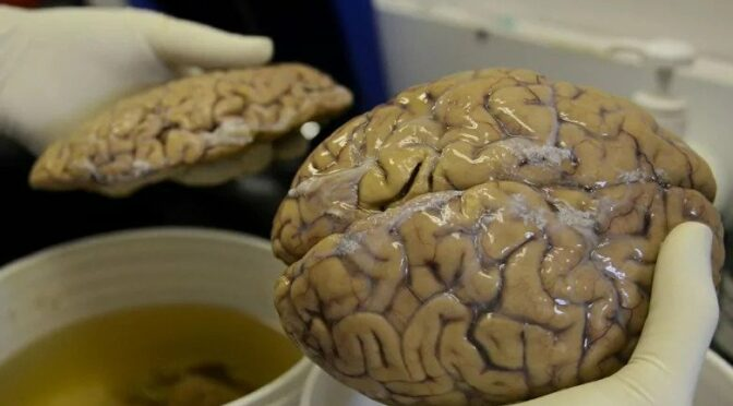Brain dead: 2500-year-old perfectly preserved British brain found