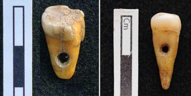 Human teeth made into pendants in Turkey 8,500 years ago