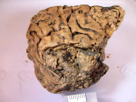Secrets of an astonishingly well-preserved 2,600-year-old human brain