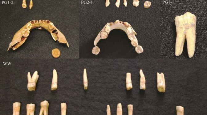 Tooth decay was a major problem for our ancestors 9,000 years ago