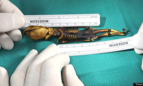"""""""Alien"""" skeleton found in Chile actually human fetus with a rare bone disorder"""
