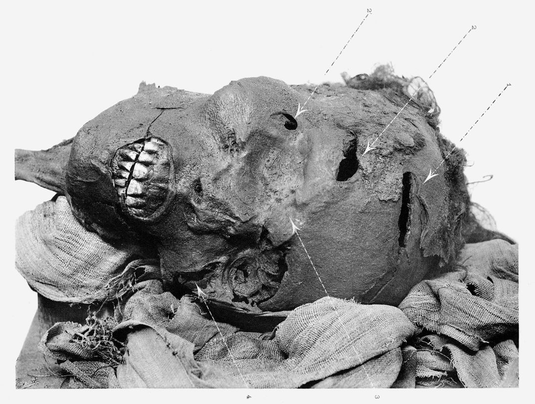 CT Scans Suggest Egyptian Pharaoh Was Brutally Executed on the Battlefield