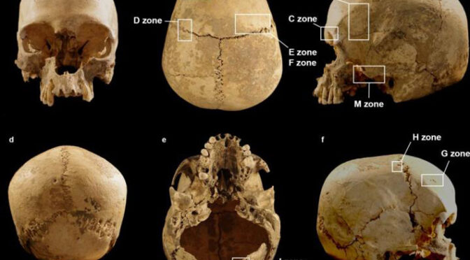 Archaeologists Solve Mystery of 5,600-Year-Old Skull Found in Italian Cave