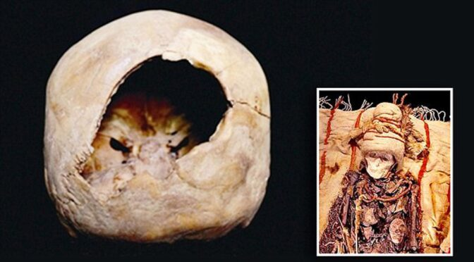 Chinese mummy suggests brain surgery was carried out 3,600 years ago