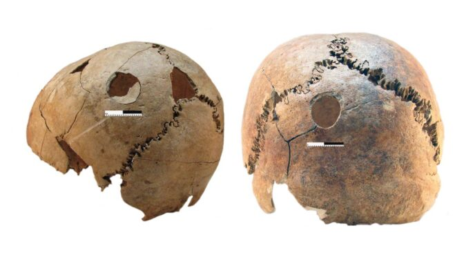 Archaeologists Uncover Evidence of Ancient, Indiscriminate Mass Murder