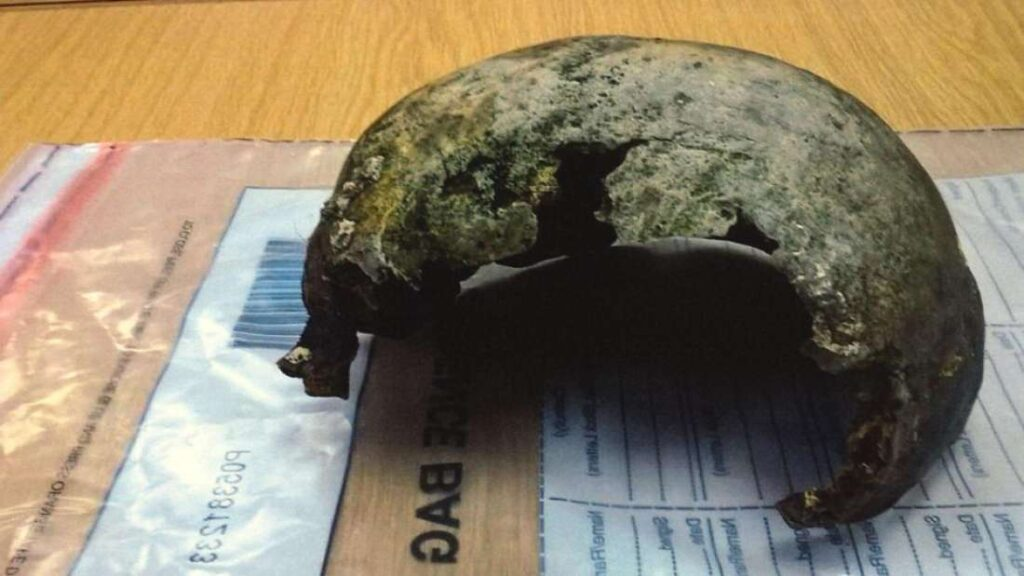 Old Football Found On Beach Turns Out To Be An Iron Age Skull