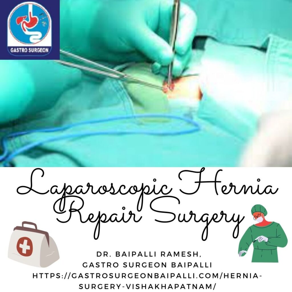THE ACCURATE PROCEDURE TO FOLLOW FOR HERNIA LAPAROSCOPIC SURGERY