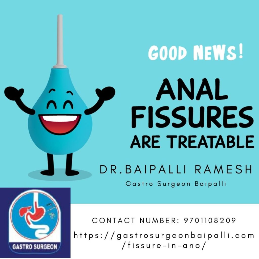 KNOW ABOUT THE DIAGNOSIS AND TREATMENT MADE BY ANAL FISSURE DOCTORS
