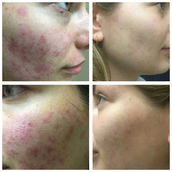 Laser Carbon Facial Kilmarnock with Angela at Uber Pigmentations