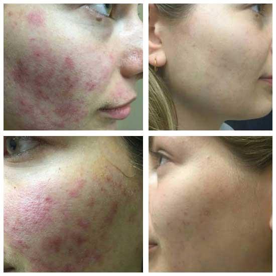 Laser Carbon Facial Kilmarnock with Angela at Uber Pigmentations