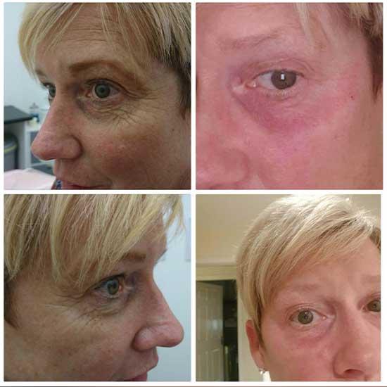 Plasma Pen Treatment on Eyes At Uber Pigmentations Kilmarnock, Ayrshire