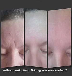 Million Dollar Facial Results