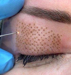 Plasma Pen Treatment on Eyelid At Uber Pigmentations Kilmarnock, Ayrshire