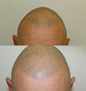 Scalp Micropigmentation Specialist in Kilmarnock