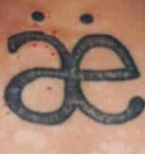 Before Laser Tattoo Removal at Uber Pigmentations in Kilmarnock, Ayrshire