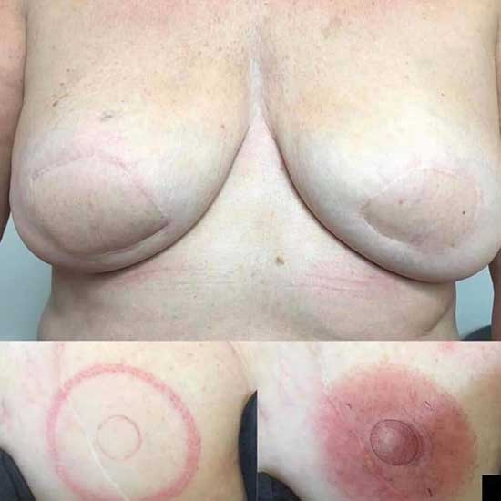 Before & After an Areola Tattoo Service