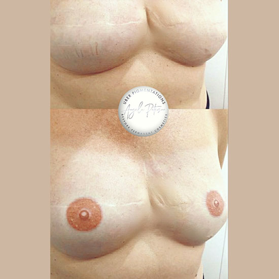 Before & After a 3-D Nipple Areola Tattoo Service