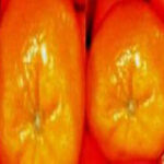 Asymmetrical Breasts