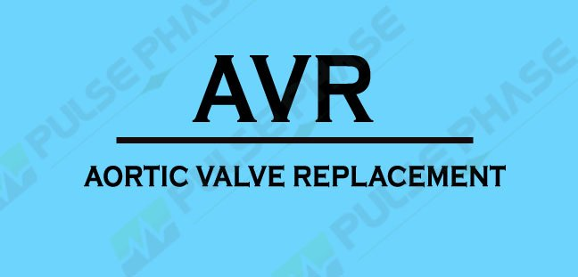 Full form of AVR