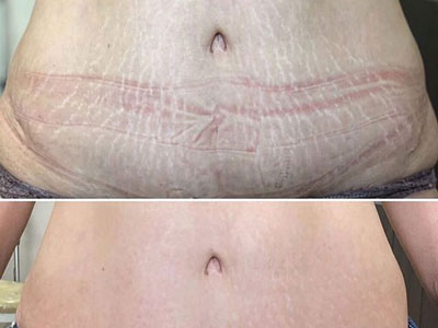 MAGNI STRETCH MARKS | £450/SESSION