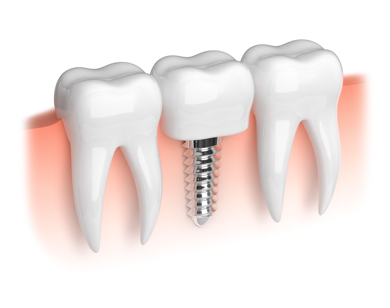 Dental Implants,dental implants in Newry, irish dental implants
