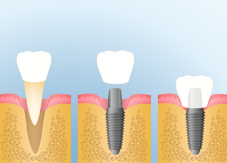 Tooth Replacement