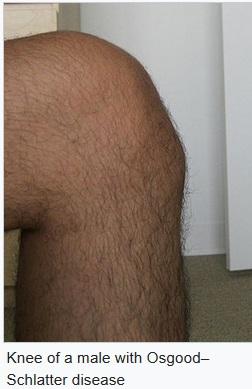 Knee male OSD