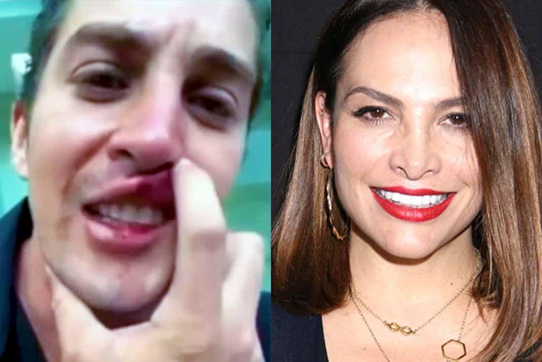 El actor Jonathan Islas se grabó un video asegurando que Fabiola Campomanes lo golpeó