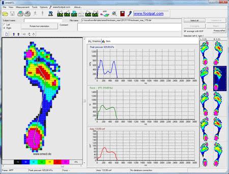 emed/CL software - novel force & pressure measurement systems