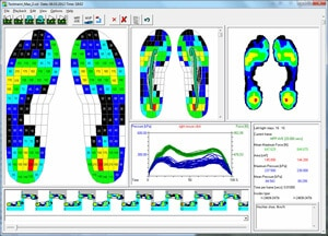 pedar standars step analaysis - force measurement systems | novel.de
