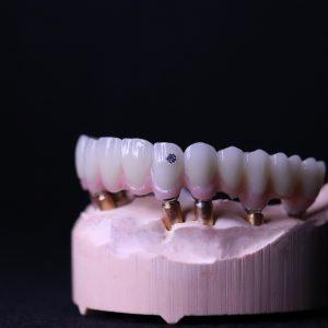 Implant crowns & bridges
