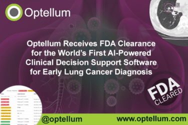 PRESS RELEASE: Optellum Receives FDA Clearance for the World's First AI-Powered Clinical Decision Support Software for Early Lung Cancer Diagnosis