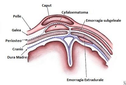 Cefaloematoma