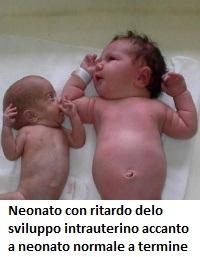 neonato-arresto-sviluppo