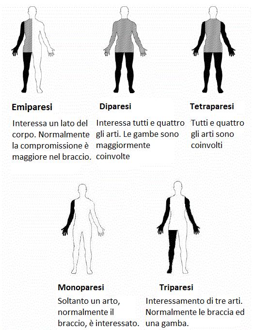 tipi-di-paralisi-spastica