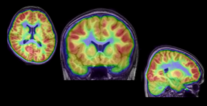 MRI and PET Scan Fusion