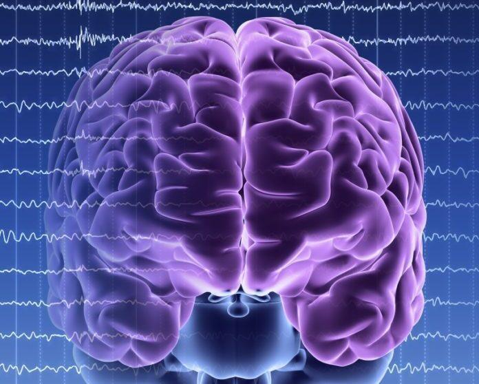 SUDEP Epilepsy