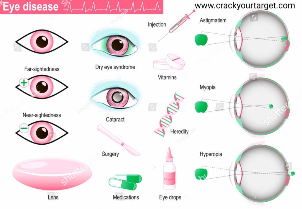 Disorder of eye, defect of eye