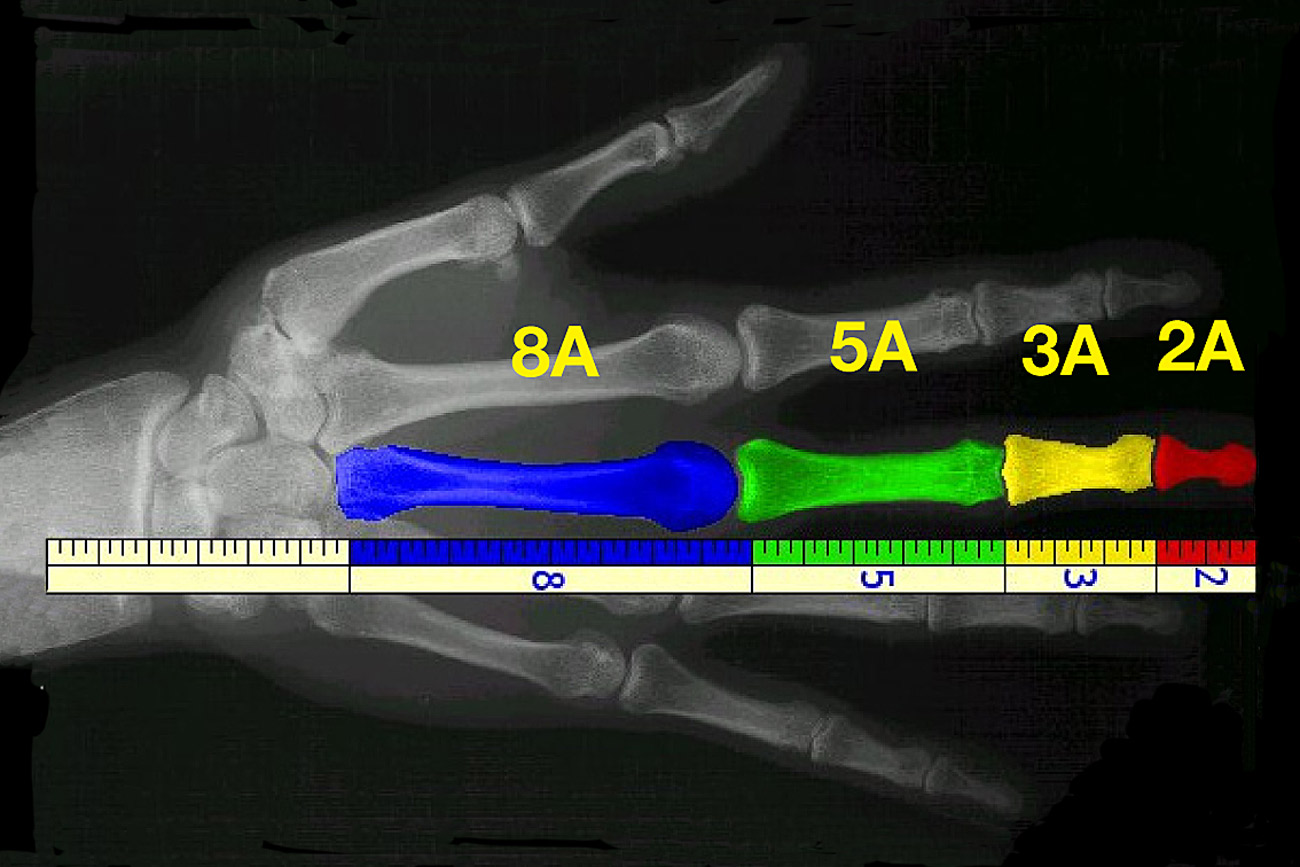 fibonacci hand bones