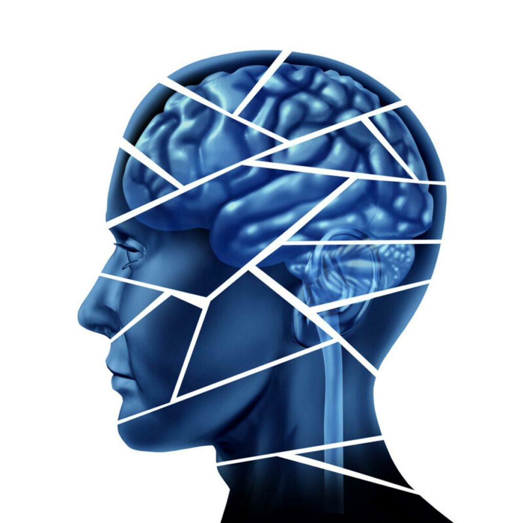 Blue head silhouette with brain broken into pieces representing brain injury