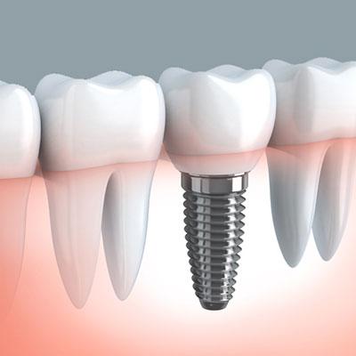 Implantología. Clínica dental Dr. Alcubierre