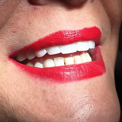 Sonrisa Lumineers. Clínica Dental certificada Doctor Alcubierre