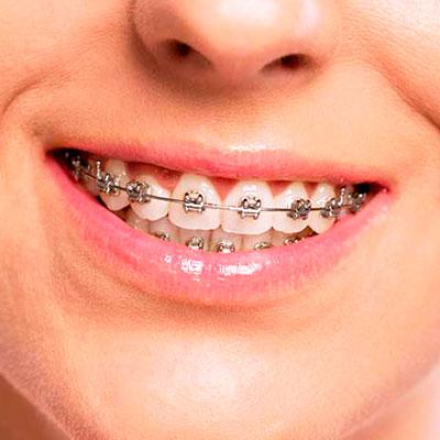 Ortodoncia con Brackets Metálicos. Clínica Dr. Alcubierre