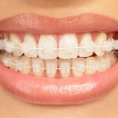Ortodoncia con Brackets de Zafiro. Clínica Dr. Alcubierre