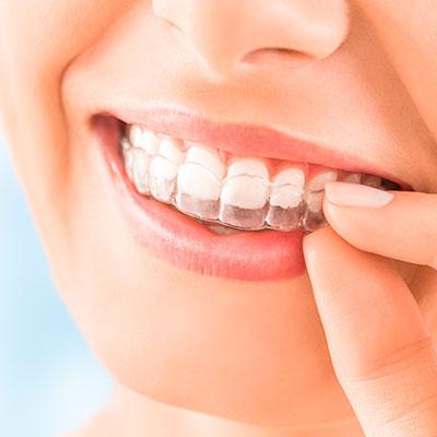 Ortodoncias Invisibles en la clínica Dr Alcubierre.