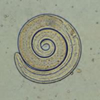 Trichinella_larvaeG