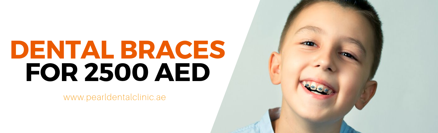 BRACES FOR AED 2500 ONLY.